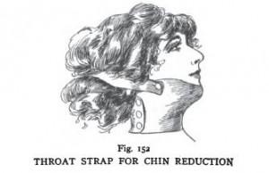 chin reduction